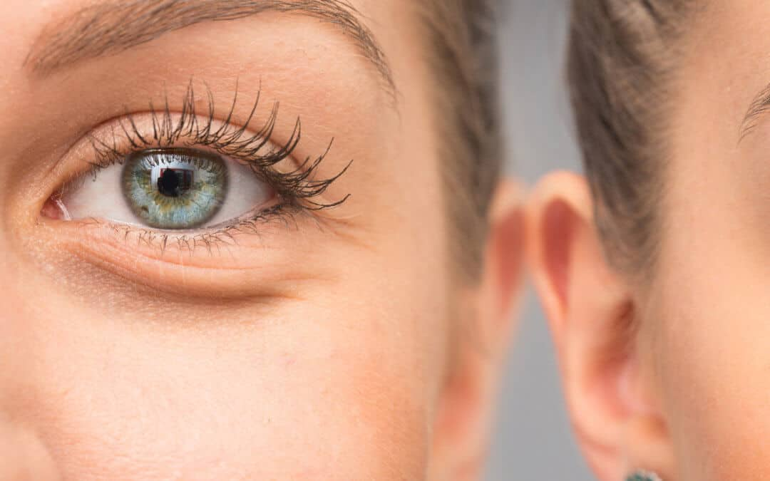What to Do About Dark Circles Under Eyes