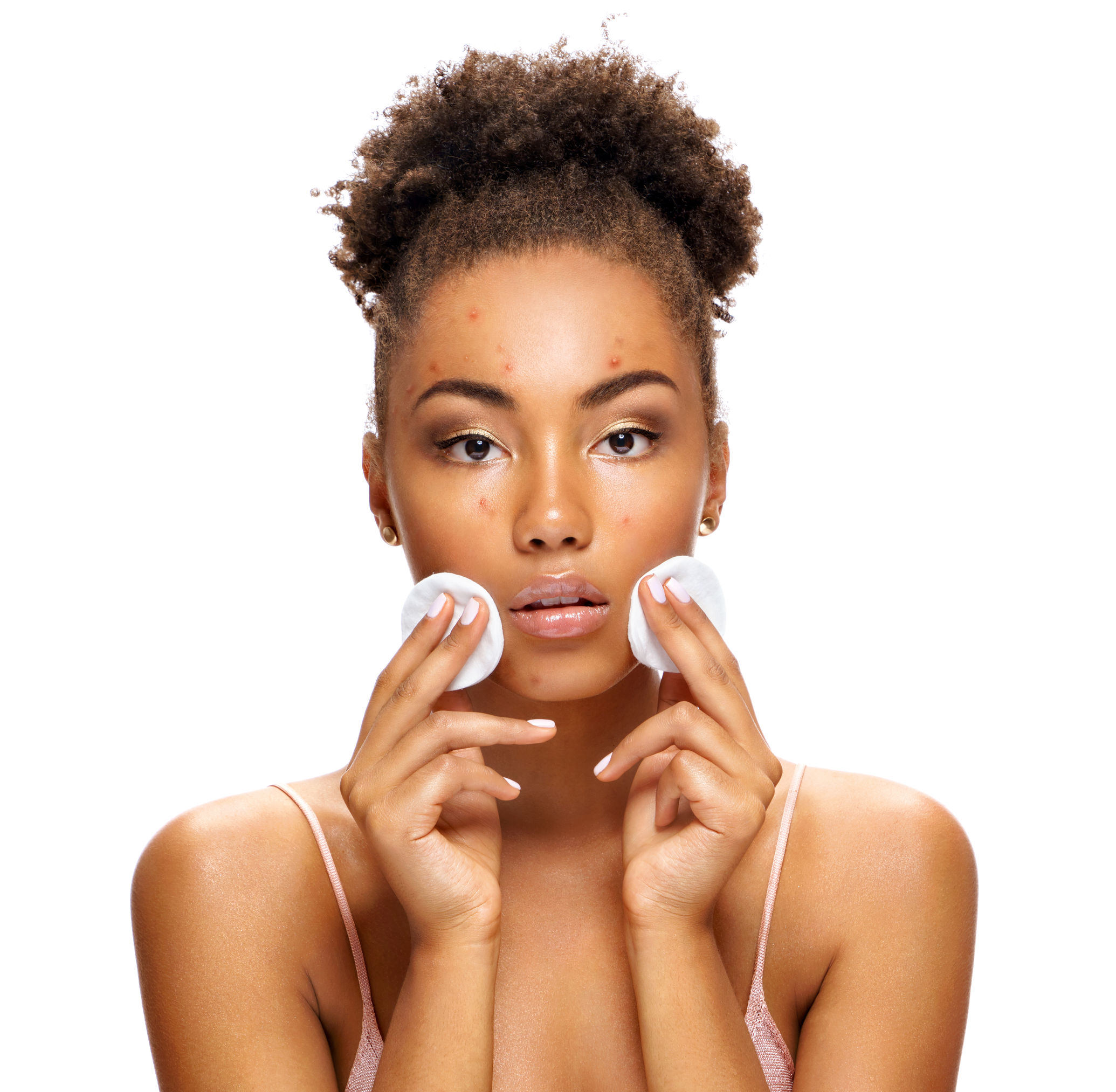 Skin Care Tips Why Won T My Breakouts Go Away One Two